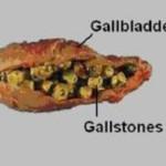 gallblader-detox